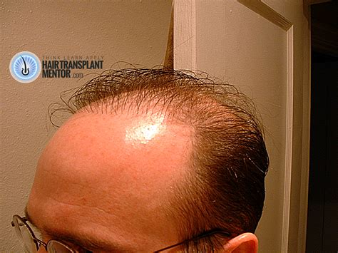 bad hair transplants have you had bad hair transplant results