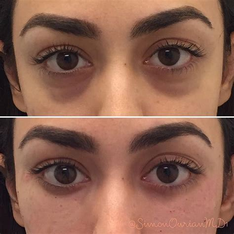 4 Things That Cause Your Eye Circles And Puffiness by Best 25 Circles Treatment Ideas On