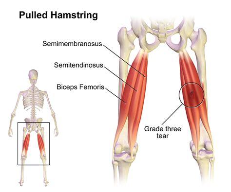 pulled groin diagram hamstring injuries