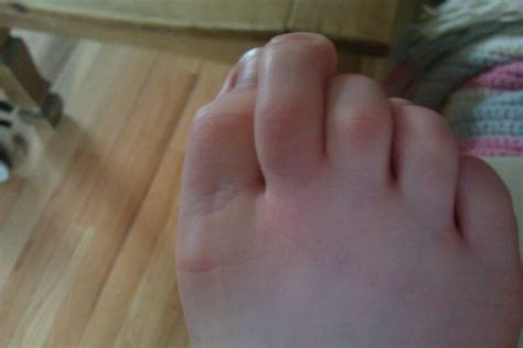 swollen toe swollen toe related keywords swollen toe keywords keywordsking