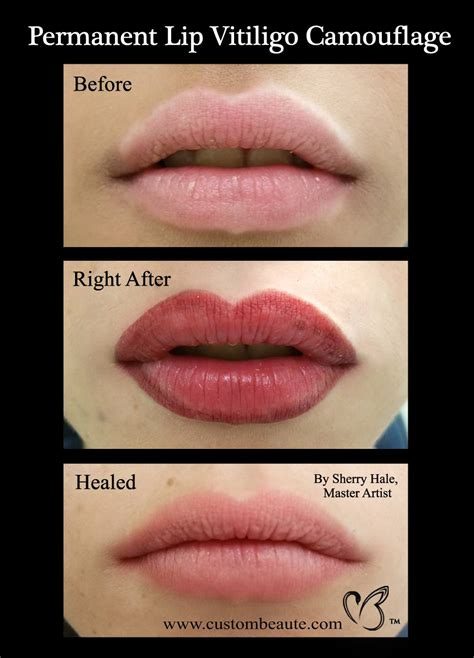permanent lips in amherst buffalo and western new york