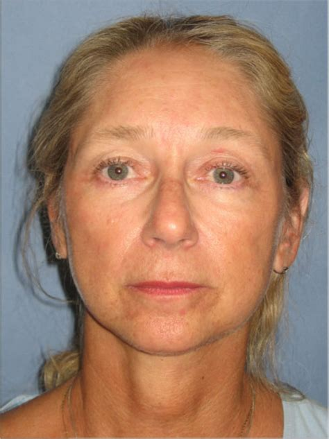 55year Old Woman Face | endoscopic brow lift upper and lower eyelid lifts and a