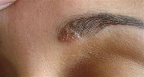 tattoo eyebrows itchy facial psoriasis of eyebrow