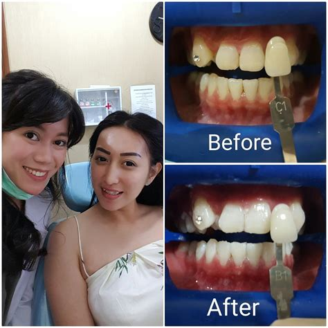 Proses Pemutihan Gigi gigi putih audy dental
