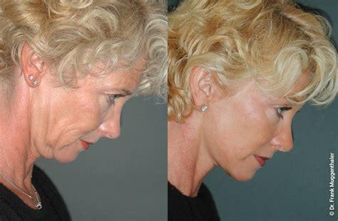 Facelift Vorher Nachher by Facelifting In Der Schweiz Gesichtslifting Halslifting