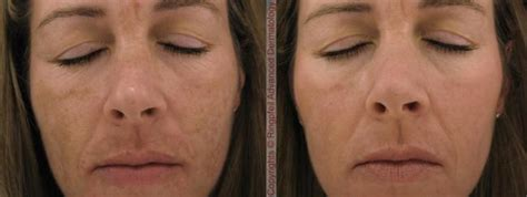 melasma hyperpigmentation treatment pa melasma removal