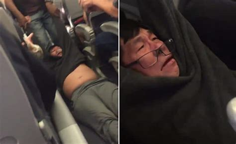 Dr Dao Criminal Record David Dao United Airlines Doctor Arrested For