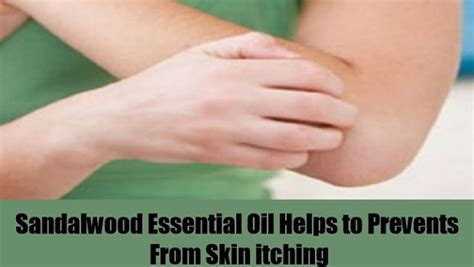 essential for itching sandalwood essential uses and benefits vkool