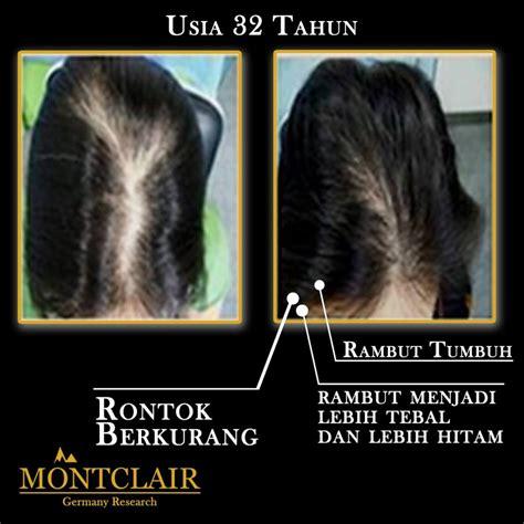 menumbuhkan rambut botak dan rontok nisimindonesia com solusi rambut rontok botak dan tipis aman untuk anak