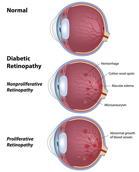 how to a diabetes service at home diabetic retinopathy petrou eye care