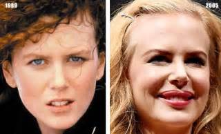 Before Surgery Kidman Plastic Surgery Before And After Photos