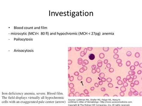 Helm Mds Lung Anemia In The Viewpoint Of Peadiatrics Obstetrics