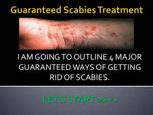how to get rid of scabies at home guaranteed scabies treatment
