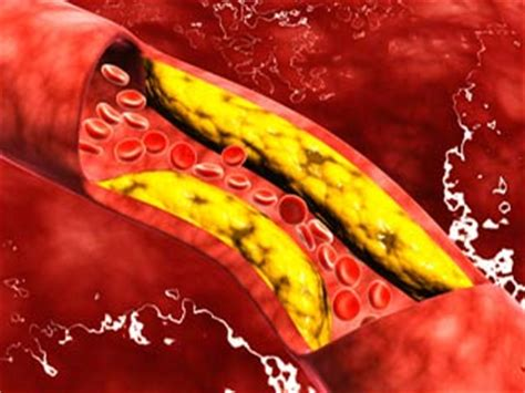 diabete alimenti da evitare e quelli permessi cerebral arteriosclerosis symptoms causes treatment