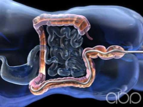 Colonoscopy Also Search For Colonoscopy 3d Animation Abp 169