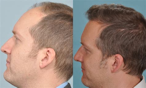 hair transplant before and after a testimonial from a uk hair transplant surgery patient
