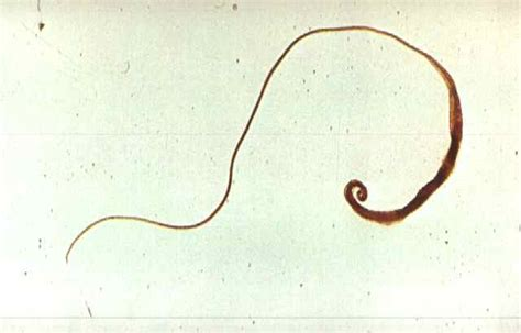 Types Of Worms In Human Stool by Types Of Roundworms Worms