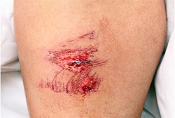understanding the healing stages of wounds