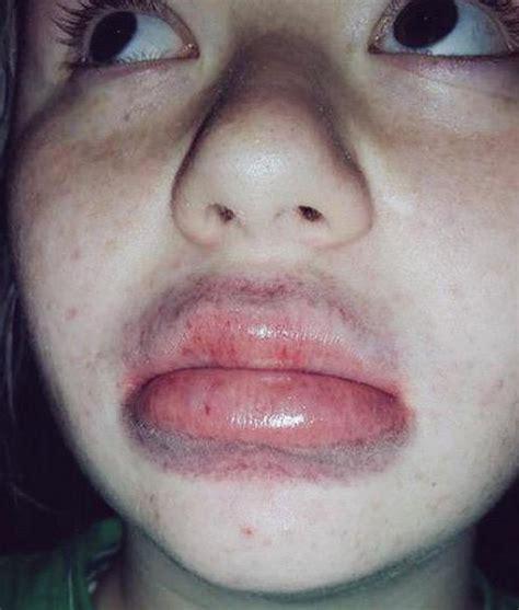kim kardashian shot glass lips kylie jenner responds to shot glass lips business insider