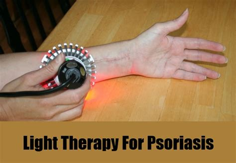 light therapy for psoriasis psoriasis uvb treatment images