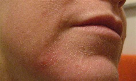 26 home remedies for peeling skin home remedies