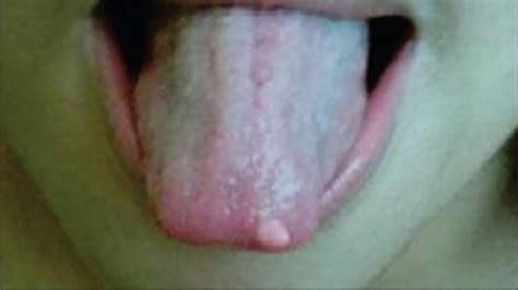 swollen red bumps on side of tounge tongue bumps enlarged papillae and other problems
