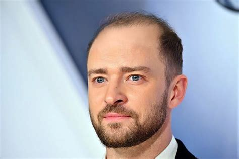 Is Justin Timberlake Balding | celebrity hair l parsa mohebi