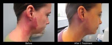 birthmark removal connecticut skin institute