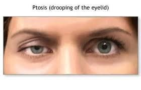 Mcgowans Droopy Eye Problem by Prevent Sagging Eyelids With Dermal Fillers