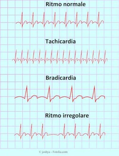 giramenti di testa al risveglio battito cardiaco accelerato a riposo in gravidanza