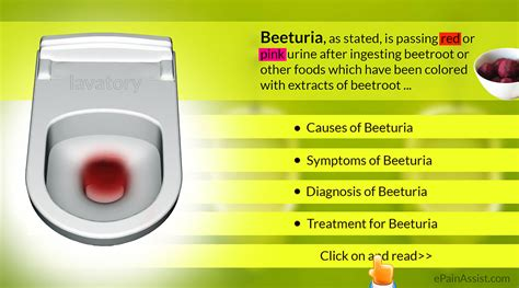 beeturia causes symptoms diagnosis treatment water intake