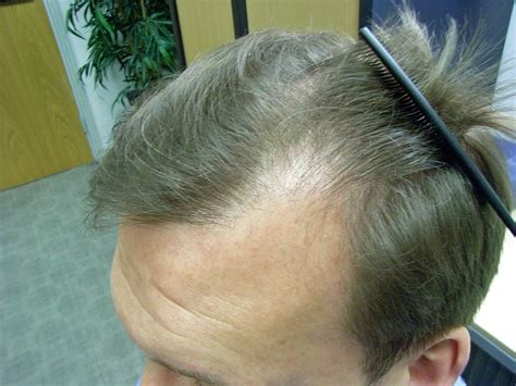 best hair for psoriasis the hair centre male suffering from hair loss and
