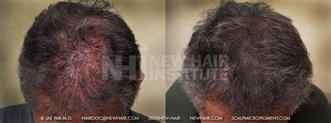 scalp micropigmentation for blonde hair scalp micropigmentation for blonde hair how scalp