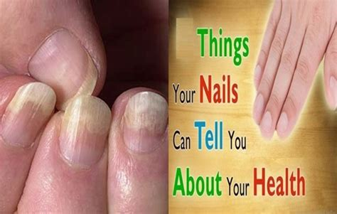 Nail Things by 6 Things Your Nails Can Say About Your Health Nail
