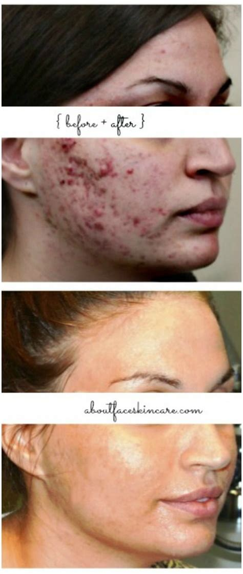 best acne light therapy 45 best acne assassin clearing up acne images on