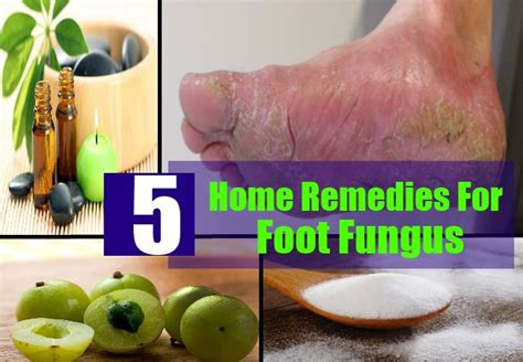 best 5 home remedies for foot fungus treatments