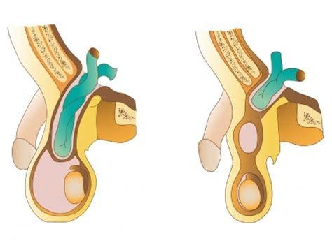 ernia inguinale interna inguinal hernia dr laker michigan surgery