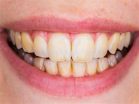 teeth whitening penerley road dental practice catford