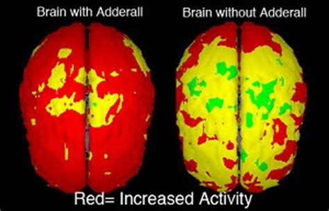 Adderall Detox Schedule by Quitting Adderall How To Quit Adderall Addiction For