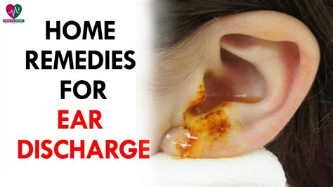 home remedies for ear discharge health