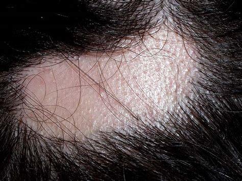 infeccion cuero cabelludo alopecia infecciosa