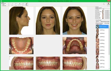 Sle Dental Assistant Resume Free Entry Level Resumes Slebusinessresume Com Certified Invisalign Photo Template