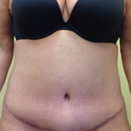 can i have a tummy tuck after c section tummy tuck abdominoplasty washington d c mary ella