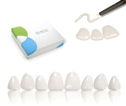 Pch Care - direct porcelain veneer duo pch 171 prestige dental care