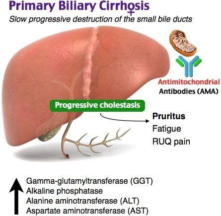 Sauna Detox For Primary Biliary Cirrhosis by 88 Best Gi Nutritional Images On