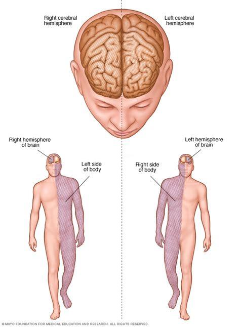 stroke treatment stroke diagnosis and treatment mayo clinic