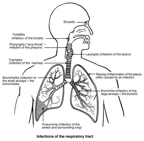 acute bronchitis what is bronchitis and bronchitis