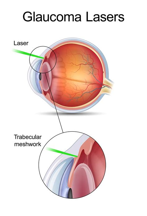 best glaucoma treatment trabeculoplasty glaucoma treatment chicago il