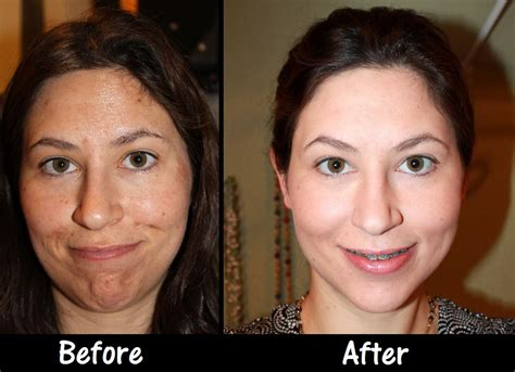 a s before after guide to chemical peels