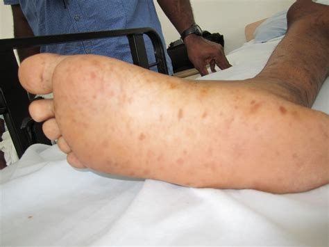 syphilis rash on hands syphilis foot rash related keywords syphilis foot rash